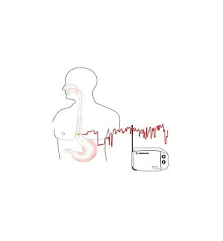 Gastroclinica - Exame - Phmetria Ambulatorial de 24 horas