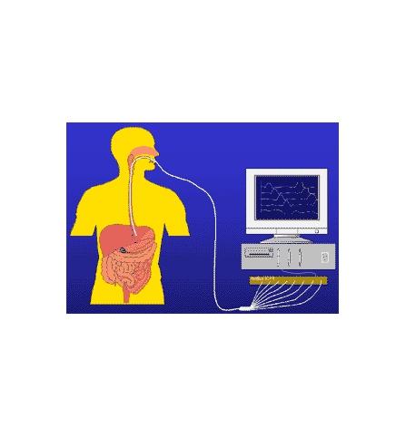 Gastroclinica - Exame - Manometria Esofágica
